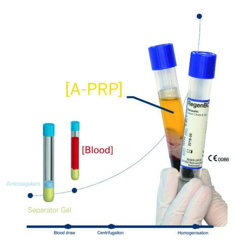 1_PRPtä käytetään yhä enemmän nivelvaurioiden- ja haavanhoitoon_press